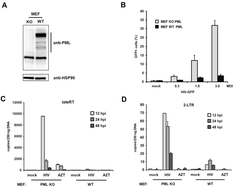 PML restricts HIV reverse transcription in MEFs. ( A ) Lysates from wild-type (WT) or PML knockout (KO) MEFs were immunoblotted and probed with anti-PML polyclonal antibodies or anti-HSP90 MAb; ( B ) WT or KO MEFs were infected with increasing MOI of VSV-G/HIV-GFP reporter virus. Infectivity was determined 72 h postinfection by flow cytometry; ( C ) WT or KO MEFs were infected with control supernatant (mock) or with HIV-GFP reporter virus at a MOI of 1. Total cellular DNA of the infected cells was isolated 12 h, 24 h, and 48 h postinfection (hpi) and used as template in qPCR to amplify late reverse transcriptase products or ( D ) 2-LTR circles. AZT was added to one well prior to infection to control for contaminating proviral plasmid. The data are presented as the average of triplicates with error bars indicating the standard deviation. One out of three independent experiments is shown.