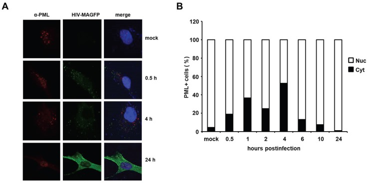 HIV infection induces a temporary relocalization of ND10 structures to the cytoplasm. ( A ) WT HFF cells were seeded on coverslips and infected with Matrix-GFP-containing HIV reporter virus at a MOI of 3 (HIV-MAGFP), or left untreated (mock). At 0.5 h, 1 h, 2 h, 4 h, 6 h, 10 h, and 24 h postinfection, the cells were extensively washed and probed for immunofluorescence analysis using anti-PML antibodies and DAPI for nuclear staining. The presence of HIV-MAGFP particles (green), the PML localization (red), and DAPI staining (blue) was analyzed at the different time points postinfection by confocal microscopy. Exemplary analysis of uninfected cells (mock) and HIV-GFP infected cells at 0.5 h, 4 h, and 24 h postinfection are depicted; ( B ) Statistical analysis of the PML localization in HIV-GFP-positive cells. For each indicated time point, the cellular localization of PML/ND10 structures in HIV-positive cells or uninfected cells (mock) was determined and is blotted as percentage of total PML-positive cells ( n = 100 cells/time point).