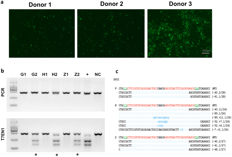 "Cas9 mediated efficient hPD-1 KO in primary human T cells of healthy donors and patients. Freshly isolated PBMC were activated in vitro by IFN-γ for 3 d and IL-2 and aCD3 for 2 d and were transfected with pST1374-Cas9-GFP and pGL3-U6-hPD-1-sgRNA plasmids for each reaction. Sample G and Z stand for two individual patients and H stands for a healthy donor. ( a ) The GFP expression was evaluated by fluorescence microscope 24 h after electroporation (Donor 1 and Donor 2 are patients. Donor 3 is a representative of healthy donor). ( b ) PCR products were amplified and subjected to T7EN1 cleavage assay. Samples with cleavage bands were marked with an asterisk ""*"". Sample G1/H1/Z1 represent control T cells and G2/H2/Z2 represent hPD-1 KO T cells. "" + "" represents for the positive control with the cleavage bands detected on HeLa cell line. NC, negative control. ( c ) DNA sequences of marked samples. TA clones from the PCR products were analyzed by DNA sequencing. The PAM sequences are underlined and highlighted in green; the targeting sequences in red; the mutations in blue, lower case; deletions (−), and insertions (+). The above experiments have been repeated 3 times with similar results."