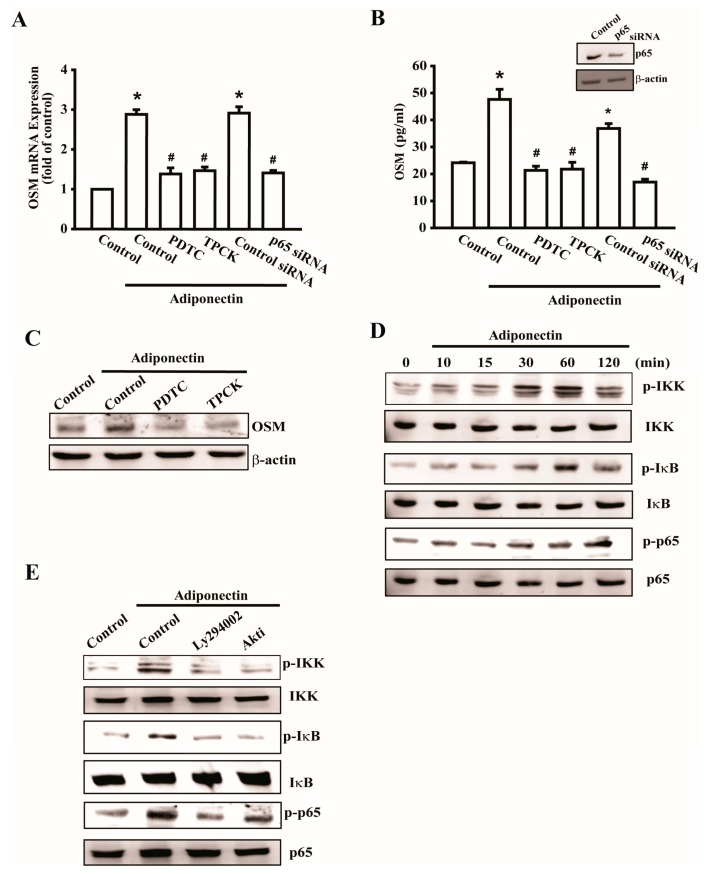 Adiponectin increases OSM expression through nuclear factor-κB (NF-κB) pathway. ( A ) Osteoblasts were pretreated with pyrrolidine dithiocarbamate (PDTC) (10 μM) and N-tosyl-L-phenylalanine chloromethyl ketone (TPCK) (10 μM) or transfected with p65 siRNA (0.5 nM) followed by stimulation with adiponectin (100 ng/mL), the mRNA expression of OSM were analyzed by qPCR ( n = 5); ( B ) Cells were transfected with p65 siRNA for 24 h, the protein level of p65 was measured by Western blot (upper-panel), and supernatant medium was collected to measure OSM expression by ELISA assay (lower-panel) ( n = 5); ( C ) Cells were pretreated with PDTC and TPCK for 30 min followed by stimulation with adiponectin (100 ng/mL), the protein level of OSM was measured by Western blot ( n = 6); ( D ) Cells were incubated with adiponectin in time intervals, and phosphate-IKK, -IκB, and -p65 expression were investigated by Western blot ( n = 5); ( E ) Cells were pretreated with PI3K inhibitor, LY294002 (10 μM), or Akt inhibitor (20 μM) for 30 min followed by stimulation with adiponectin (100 ng/mL), phosphate-IKK, -IκB, and -p65 expression were investigated by Western blot ( n = 6). Results are expressed as mean ± standard error of mean S.E.M. *, p