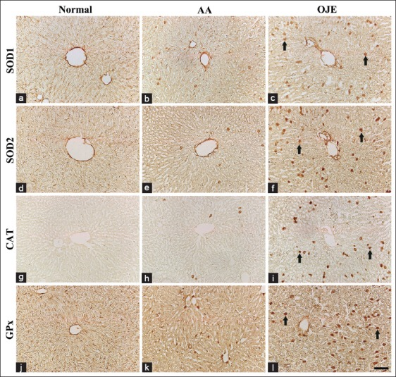 Immunohistochemistry for superoxide dismutase <t>(SOD1)</t> (a-c), manganese superoxide dismutase (SOD2) (d-f), catalase (CAT) (g-i) and glutathione peroxidase (GPx) (j-l) in the rat liver of the normal-(left column), ascorbic acid - (middle column) and Oenanthe javanica extract (OJE) - (right column) groups. Strong SOD1, SOD2, CAT, and GPx immunoreactive cells (arrows) are markedly increased in the OJE-group. Scale bar = 120 μ m.