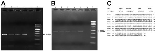 Real-time PCR amplification of ocular granuloma DNA obtained from patients infected with trematodes, South India. Gel electrophoresis was performed on 2% agarose gel by using Power SYBR Green Real-Time PCR (Applied Biosystems, Warrington, UK). A) Lanes 1–4 show subconjunctival granuloma DNA; lane 5, negative control; lane 6, 100-bp DNA marker. Arrow indicates 369-bp amplified DNA product. B) Lanes 1–5 show anterior chamber granuloma DNA; lane 6, negative control; lane 7, 100-bp DNA marker. Arrow indicates 369-bp amplified DNA product. C) BLAST ( http://blast.ncbi.nlm.nih.gov/Blast.cgi ) analysis output of patient granuloma DNA sequence showing maximum identity with internal transcribed spacer 2 region gene sequence of the Procerovum species resembling GenBank reported sequence EU826639.1 from Vietnam.