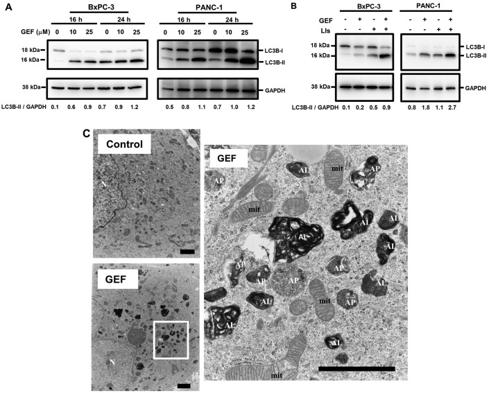 Autophagy induction after treatment with GEF. (A) PANC-1 cells and BxPC-3 cells were treated with GEF (10 and 25 μM) for 16 and 24 h. Cellular proteins were separated by 15% SDS-PAGE and immunoblotted with anti-LC3B Ab. Immunoblotting with anti-GAPDH mAb was performed as an internal control. Numbers indicating the expression ratios of LC3B-II/GAPDH were determined using densitometry. (B) PANC-1 cells and BxPC-3 cells were cultured with or without GEF (25 μM) in the presence or absence of lysosomal inhibitors (LI), E-64d (10 μg/ml), and pepstatin A (10 μg/ml) for 16 and 24 h. Immunoblottings were performed as (A). Numbers indicate the expression ratios of LC3B-II/GAPDH. (C) PANC-1 cells were treated with GEF (25 μM) for 48 h, and electron microscopy was performed. Scale bars, 2 μm. N, nucleus; mit, mitochondria; AP, autophagosome; AL, autolysosome.