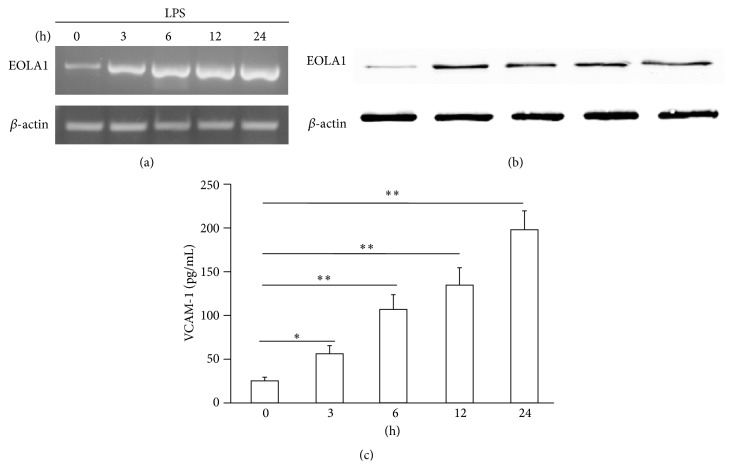 LPS induces the production of EOLA1 and VCAM-1 in ECV304 cells. (a) ECV304 cells were treated with LPS (100 ng/mL) for various periods of time, 0, 3, 6, 12, and 24 h, and the total RNA was analyzed by RT-PCR to EOLA1. (b) The lysates of ECV304 cells were analyzed by Western blotting with antibodies to EOLA1. Data show one representative experiment out of three independent experiments. (c) ECV304 cells were stimulated with LPS (100 ng/mL) for the indicated periods of time and the supernatants were collected and assayed for VCAM-1 production by ELISA. Data represent the mean ± SD of three independent experiments.