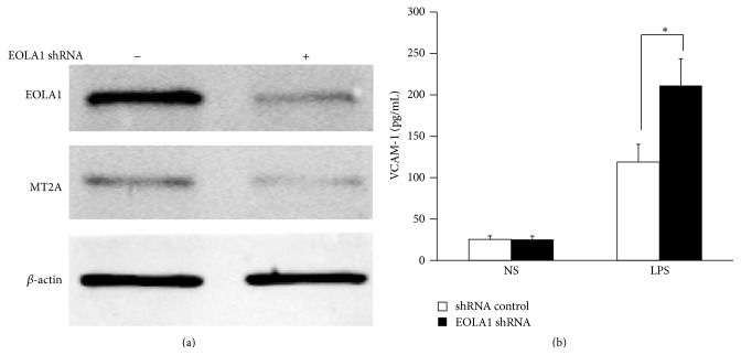 Knockdown of EOLA1 with shRNA inhibits the expression of MT2A and increases the LPS-induced VCAM-1 production in ECV304 cells. (a) ECV304 cells were transfected with control or EOLA1 shRNA for 48 h. The cells were lysed and analyzed by Western blotting with anti-EOLA1 or anti-MT2A antibodies, β -actin as a loading control. (b) ECV304 cells were transfected with control or EOLA1 shRNA for 24 h and then cultured with or without LPS (100 ng/mL) and the concentration of VCAM-1 in the culture supernatants was determined 6 h after stimulation. Data represent the mean ± SD of three independent experiments ( ∗ p