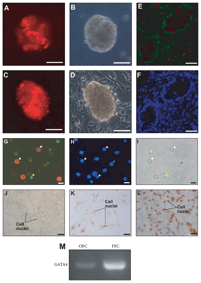 Maintenance of GATA4-positive feeder cells and germ cell-derived colonies (GDCs) in subculture at passages 1 and 10. GDC cells (labeled red) in passages 1 and 10 were maintained in the colonies in passages 2 and 11 ((A) and (C)). Panels (B) and (D) are bright-field images of panels (A) and (C), respectively. GATA4 and PGP 9.5 double staining in neonatal pig testis tissue (E). Panel (F) shows nuclear staining of panel (E). Total testicular cells were stained with antibodies against GATA4 (green) and PGP 9.5 (red) (G). Nuclear staining and bright-field images are shown in panels (H) and (I). Panel (J) shows negative controls on feeder cells attached to the wells. Panels (K) and (L) show GATA4 staining of old feeder cells (OFCs) and fresh feeder cells (FFCs), respectively, in passage 2. White and yellow arrows indicate PGP 9.5- and GATA4-positive cells, respectively; green arrows indicate PGP 9.5- and GATA4-negative cells. Scale bars indicate 50 μ m in panels (A)–(F) and 10 μ m in panels (G)–(L). Panel (M) shows PCR results for GATA4 in OFCs and FFCs in passage 2.