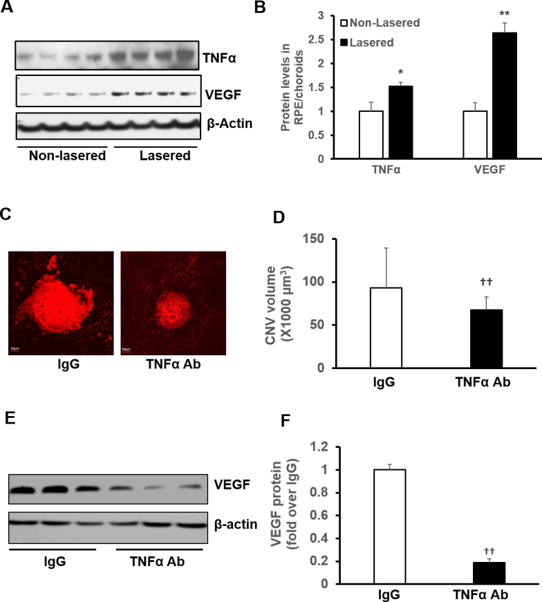 TNF-α mediates CNV formation in association with VEGF expression in a murine model of laser-induced CNV. A : Representative images of western blot of tumor necrosis factor alpha (TNF-α) and vascular endothelial growth factor (VEGF) protein in RPE/choroids of C57Bl/6 6-week-old mice without laser treatment (non-lasered) or 7 days after laser treatment. B : Quantification of densitometry (lasered; *p