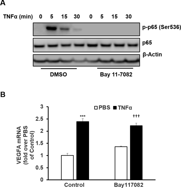 TNF-α-mediated NF-ҡB activation is not involved in VEGF upregulation in human RPE cells. A : Western blots of p-p65, total p65, and β-actin. B : Real-time PCR of vascular endothelial growth factor (VEGF) in RPE cells pretreated with Bay 11–7082 (5 µM) or control dimethyl sulfoxide (DMSO) for 30 min before incubation with tumor necrosis factor alpha (TNF-α; 20 ng/ml) for an additional ( A ) 5, 15, or 30 min or ( B ) 12 h (***p