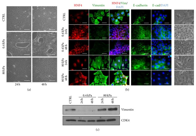 Soft substrate induces a rapid and homogeneous epithelial differentiation of RLSCs. (a) Phase-contrast micrographs of RLSCs grown on Petri plastic dish (CTRL;  E >  1GPa) and on hydrogels with  E  = 0.4kPa and 80kPa, for 24 and 48 hours. Images are representative of three independent experiments. Scale bar: 100 μ m. (b) Phase-contrast micrographs and immunofluorescence of cells cultured on plastic (CTRL), 0.4kPa and 80kPa for 24 and 48 hours, stained for HNF4 α , Vimentin, and E-cadherin. The nuclei were stained with DAPI. Images are representative of three independent experiments. Scale bar: 50 μ m. (c) Western blot analysis of Vimentin at 24 and 48 hours after seeding on substrates with the indicated  E  values. CDK4 was used as a loading control.