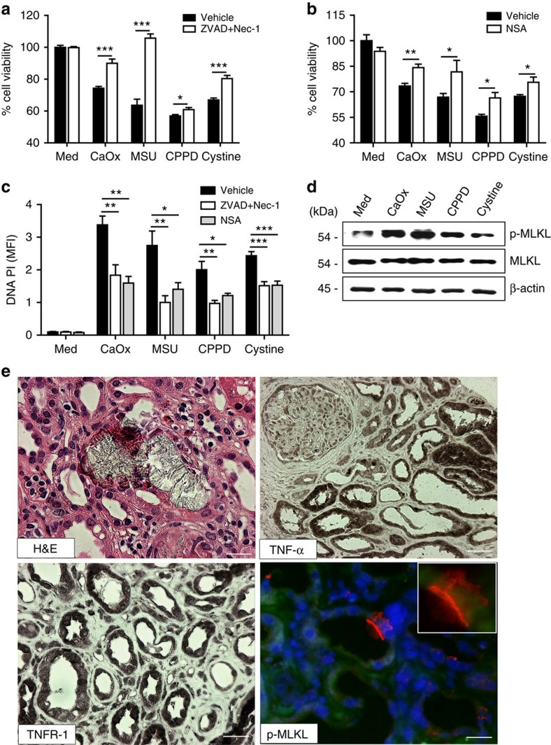 Necroptosis is involved in human acute oxalate nephropathy. ( a – c ) Primary renal human progenitor cells were pretreated with either ZVAD–FMK (10 μM) and Nec-1 (100 μM) or NSA (1 μM) before being exposed to CaOx (1000 μg ml −1 ), MSU (500 μg ml −1 ), CPPD (500 μg ml −1 ) and cystine (500 μg ml −1 ). Cell viability was assessed by MTT assay ( a and b ) and cell death was assessed quantifying PI positivity ( c ) 24 h later. Data are expressed as mean±s.e.m. of three independent experiments. Baseline viability is set as 100%. Data were analysed using Student's t -test. * P