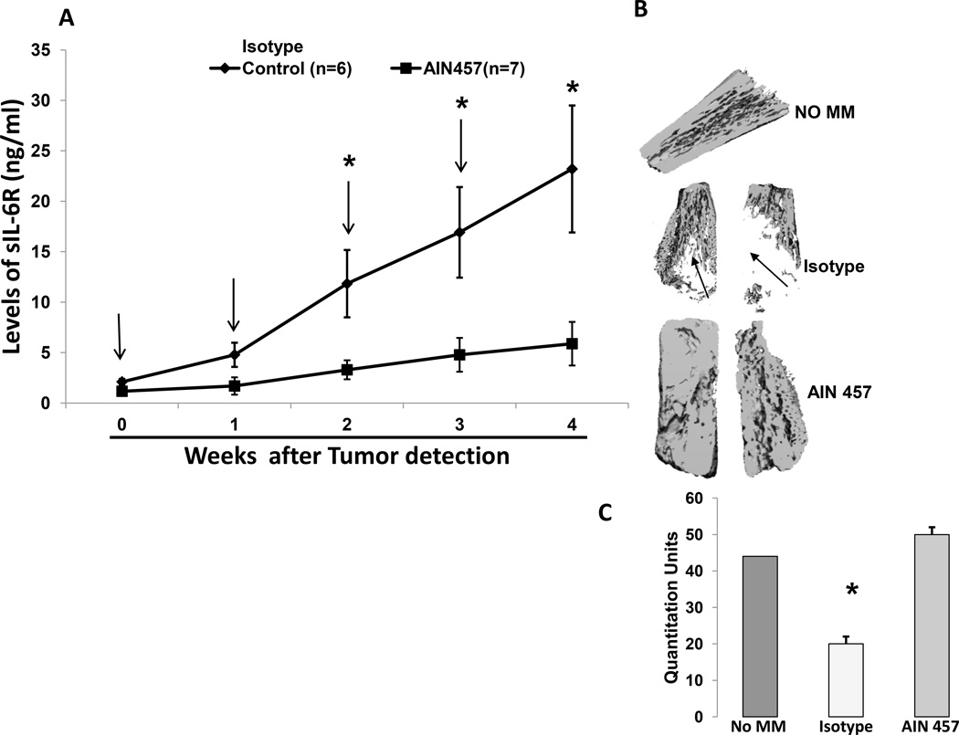 Inhibition of tumor growth and prevention of bone resorption by AIN-457, IL-17A antibody in SCID human myeloma model A) SCID mice were transplanted with human fetal bones, and after four weeks, myeloma cells were injected into the bones. One group was treated with vehicle with isotype control antibody and another group of mice were treated subcutaneously with AIN-457 (10µg/ml-/mouse/injection) for four weeks following first detection of tumor by measuring human soluble IL-6R in the serum. Serum samples were collected weekly and level of humans IL-6R was measured by ELISA. Baseline values before treatment were not significantly different among groups. Representative of two experiments is shown (p