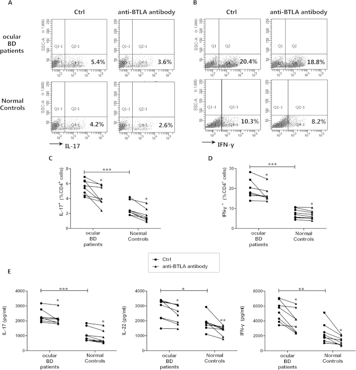 Agonistic anti-BTLA antibody inhibits overreacted Th17 and Th1 cell responses. Purified CD4 + T cells from ocular BD patients ( n = 8 ) and normal controls ( n = 8 ) were stimulated with anti-CD3/CD28 in the presence or absence of 1μg/ml agonistic anti-BTLA antibody for 3 days. ( A,B ) The cells were stimulated with PMA/ionomycin and analyzed for intracellular expression of IL-17 and IFN-gamma by flow cytometry. Scatter diagrams of a representative subject for each group are shown. ( C,D ) Frequency of IL-17- and IFN-gamma-producing CD4 + T cells. ( E ) The production of IL-17, IL-22 and IFN-gamma in the supernatants was determined by ELISA. *p