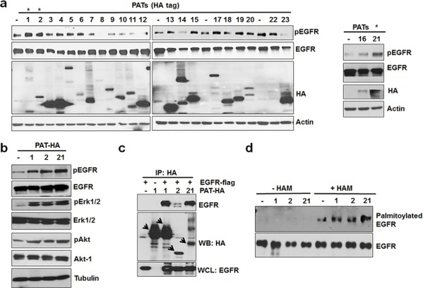 PAT 1, 2 and 21 increases EGFR activation and palmitoylation a. Screening of PAT enzymes for EGFR activation. A549 cells were transfected with individual PAT (HA-tagged) constructs for 24 hours followed by 12 hours of serum starvation. Isolated protein samples were tested for EGFR activation using pEGFR antibody. b. Western blot analysis of protein samples for pEGFR, EGFR, pAkt, Akt, pErk 1/2, Erk 1/2 and Actin isolated from A549 cells transfected with PAT plasmids 1, 2, 21 or vector alone for 24 hours followed by serum starvation for 12 hours. c. Western blot analysis of immunoprecipitated samples for HA and EGFR antibodies. HEK 293 cells were transfected with EGFR-flag alone or in combination with indicated PATs as shown in the Figure 3c and PAT enzymes were immunoprecipitated with HA antibody. d. Western blotting analysis of palmitoylated EGFR from PC3 cells transfected with vector alone or PATs.