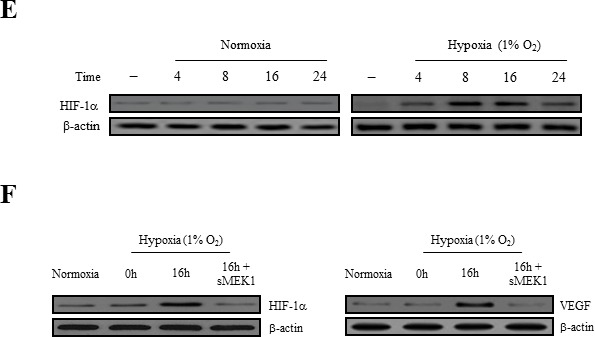 sMEK1 decreases VEGF-stimulated VEGFR-2 phosphorylation (Tyr-951) A. HUVECs were transfected with different concentrations of sMEK1, and total cell lysates were prepared. The expression of total and phosphorylated (Tyr-951 or Tyr-1175) VEGFR-2 was measured by immunoblot analysis in cells treated with VEGF. B. HUVECs were treated with VEGF and then transfected with the control vector, sMEK1, or sMEK1 plus sisMEK1. sMEK1 suppressed VEGF-stimulated VEGFR-2 (Tyr-951) phosphorylation. VEGFR-2 (Tyr-951 or Tyr-1175) phosphorylation was evaluated using specific antibodies, and VEGFR-2 was used as a loading control. C. sMEK1 suppressed VEGFR-2 kinase activity in vitro , analyzed using an in vitro HTScan VEGFR-2 kinase assay kit followed by colorimetric detection according to the manufacturer's protocols. Values are presented as means±SDs; *, P