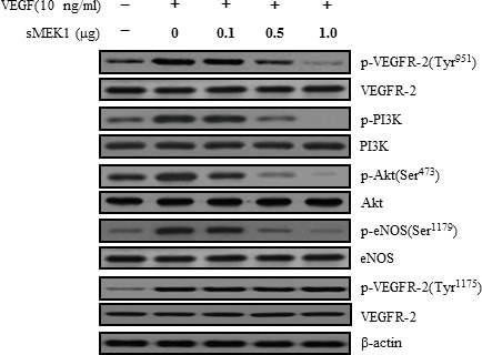 sMEK1 suppressed the phosphorylated proteins of the VEGFR-2/PI3K/eNOS signaling cascade Cell lysates were prepared from transfected SKOV-3 cancer cells or HUVECs (data not shown) and subjected to immunoblotting using primary antibodies specific to the phosphorylated or unphosphorylated forms of negative and positive regulators of Akt, including PI3K and eNOS. All experiments were repeated at least three times with similar results.