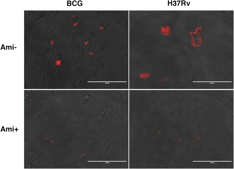 Mtb and BCG bacilli cannot spread between BMECs in a monolayer Cells were infected with fluorescent Mtb or BCG bacilli (MOI = 0.1) for 24 h, then washed three times with PBS to remove unbound bacteria. The cells were overlaid with 1% agarose/DMEM with 1% FBS, with or without amikacin (50 μg/ml) and cultured for up to 7 days. Extracellular bacterial replication was observed in amikacin-free infections with Mtb and BCG. However, plaque formation, indicating bacterial spread and cytotoxicity, was only found in Mtb -infected cells in the absence of amikacin. Infections were performed in triplicate and experiments repeated two times.