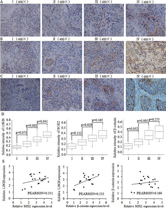 The positive correlation between SOX2/β-catenin and LIN28 and their clinical value in evaluating prognosis of patients with breast cancer Representative examples of immunohistochemical staining for LIN-28 A. SOX2 B. and β-catenin C. in each of the clinical stages of breast cancers as indicated. Stage I had the lowest expression of LIN28, SOX2, and β-catenin. D. Quantification of LIN-28, SOX2, and β-catenin relative immunostaining intensity for each clinical stage of breast cancers. Data is shown as mean ± SEM. E. Relative expression levels of SOX2 and LIN28, β-catenin and LIN28, and SOX2 and β-catenin, with correlation coefficients shown in figure.