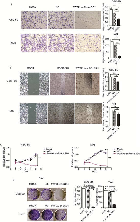 Knock-down of LSD1 inhibit the invasion and metastasis in GBC cell lines Comparison among the MOCK (untransfected), NC (transfected with the PWPXL-GFP plasmid) and LSD1 knockdown/RNAi (transfected with the PWPXL-sh-LSD1 plasmid) groups of GBC-SD and NOZ cells on A. Transwell assay, B. wound-healing assay, C. proliferation assay using CCK-8 and D. plate colony formation assay. P value was significant at less than 0.05.