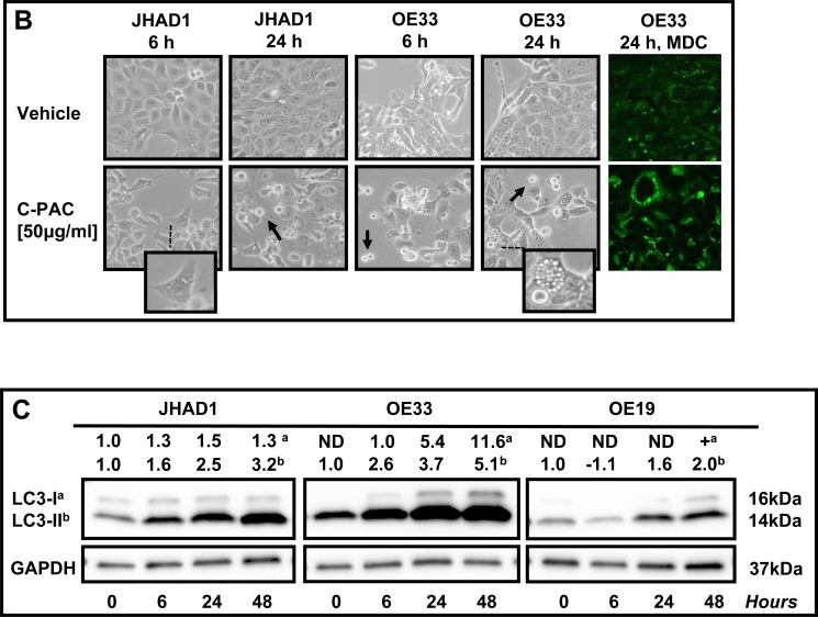 Effect of C-PAC on autophagy induction in EAC cells A. Ultrastructural changes associated with C-PAC treatment of EAC Cells. Transmission electron micrographs were captured of JHAD1 and OE19 cells following 6 and 24 hours of treatment with C-PAC [50μg/ml] to evaluate autophagic vacuole formation. a) and e) show vehicle treated JHAD1 cells; whereas, i) and m) show vehicle treated OE19 cells at 6 and 24 hours, respectively. Vehicle treated cells are characterized by microvilli protruding from the cell surface, a round smoothly outlined normal appearing nuclei, normally distributed heterochromatin, well defined plasma membrane and well preserved cytoplasmic organelles. b), c), and d) show cytoplasmic vacuolization (black arrows), increased formation of single and double walled autophagic vesicles as shown as autophagosomes (blue arrowheads) and autolysomes (white arrowheads, black outline) as early as 6 hours post C-PAC treatment of JHAD1 cells. Increased autophagy continues 24 hours following C-PAC treatment as displayed in f), g), and h) with increased electron dense cargo supporting formation of degradative autophagic vacuoles. C-PAC treatment of OE19 cells induced cellular necrosis as illustrated in j) and k) by moderate chromatin clumping and nuclear disintegration or karyolysis (asterisk), accompanied by loss of plasma membrane integrity and marked loss of cellular contents as in k), l), and o) (extra-cytoplasmic cellular debris, red arrowhead). Cellular blebbing (k, n) and fragmentation of the nucleus (Karyorrhexis, black arrowhead) are evident. p) Autophagic vacuoles containing cellular debris indicate a low level of autophagy induction in OE19 cells. B. Representative photomicrographs (200X) of JHAD1 and OE33 EAC cells treated with C-PAC [50 μg/ml] for 6 and 24 hours, black arrows indicate apoptotic cells. The enlarged inset illustrates morphological changes of cytoplasmic swelling and vacuolization consistent with autophagy induction (as also noted in Figure 1D ). Monodansylcadaverine (MDC) staining and confocal microscopy were employed next to probe autophagic vacuoles in OE19, JHAD1 and OE33 cells following C-PAC treatment [50 μg/ml] for 24 hours. C-PAC treatment of OE33 cells resulted in increased accumulation of punctate staining as illustrated in large MDC positive vesicles (far right, bottom panel). C. To further investigate C-PAC induced autophagy, JHAD1, OE33 and OE19 cells were treated with C-PAC [50 μg/ml] or vehicle in triplicate and lysates collected at baseline and following 6, 24 and 48 hours of treatment; then, probed for LC3B, microtubule-associated protein 1 light chain 3 beta, an important early marker and effector of autophagy. Representative images are shown, expression values were normalized to the loading control GAPDH and a mean fold change from baseline or time of first detection calculated utilizing Quantity One software (Bio-Rad, Hercules, CA). Positive fold change values indicate increased expression and negative values reflect decreased expression. Figure 3C shows that C-PAC strongly ( P