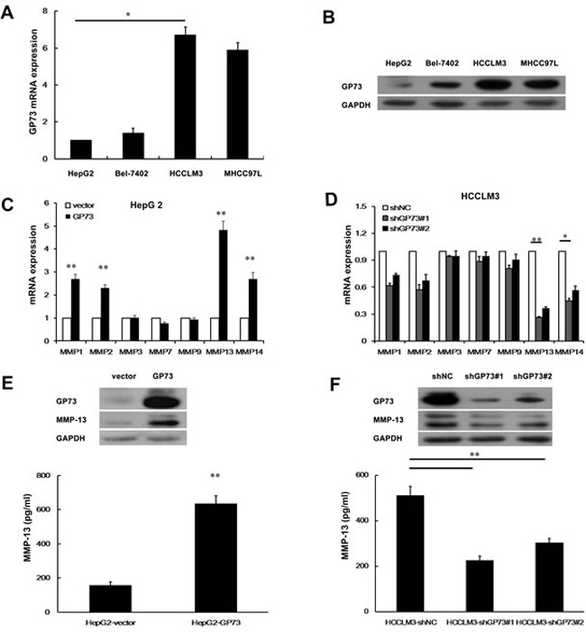 GP73 enhances MMP-13 expression Relative levels of GP73 in 4 liver cancer cell lines were detected by qRT-PCR A. and Western blot B. . qRT-PCR analysis of MMPs mRNA level in HepG2 cells with GP73 overexpression C. or HCCLM3 cells with GP73 knockdown D. . Cellular levels of GP73 and MMP-13 in HepG2 cells with GP73 overexpression ( E. , top) or HCCLM3 cells with GP73 knockdown ( F. , top). The levels of secreted MMP-13 (active form) in the culture supernatants were measured by ELISA ( E. , F. , bottom). A t -test was used to evaluate the statistical significance of these experiments, as compared to the control. * P