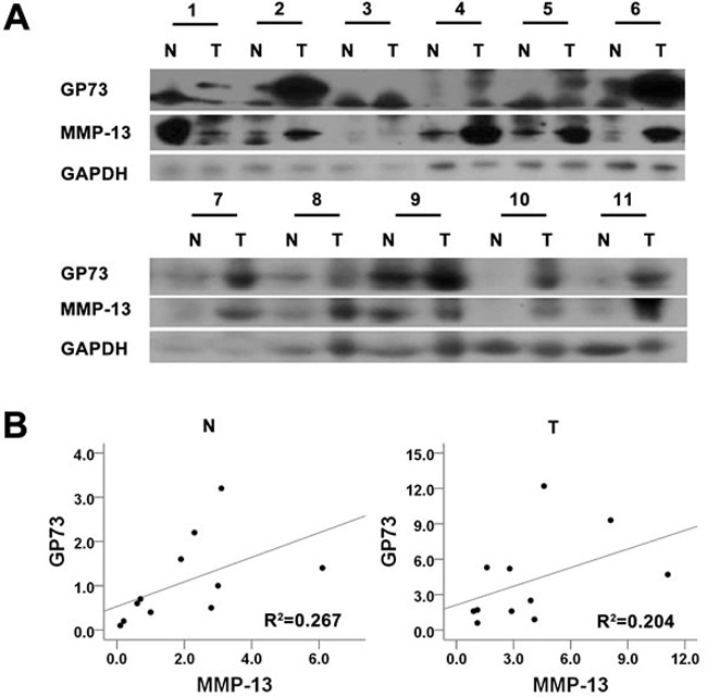 GP73 and MMP-13 are up-regulated in HCC tissues Tumors and the adjacent liver tissues from 11 HCC patients were prepared for Western blot analysis of GP73 and MMP-13 expression A. . The abundance of GP73 and MMP-13 was then analyzed B. .