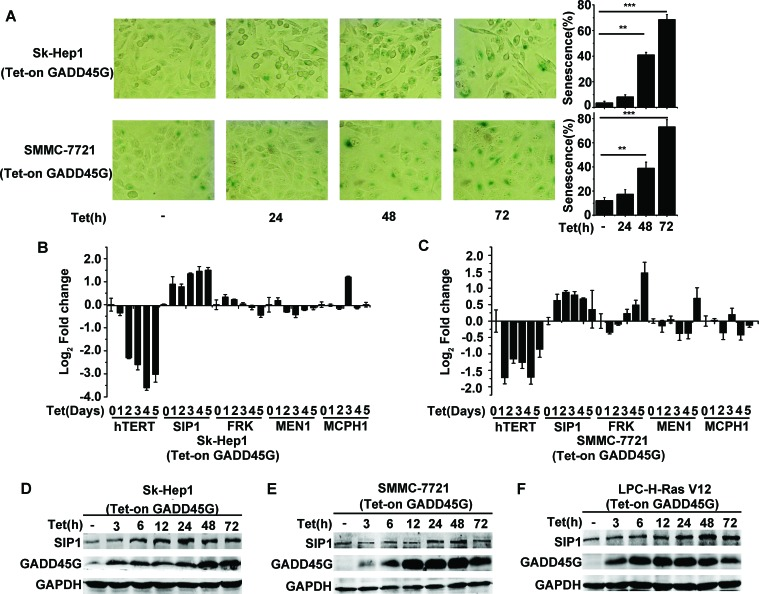 SIP1 activation in GADD45G-induced tumor cell senescence (A) Tet-on-GADD45G-Sk-Hep1 and Tet-on-GADD45G-SMMC-7721 cells were cultured for the indicated times in the presence of 2.5μg/mL DOX (Tet-on) for GADD45G induction. The representative images of SA-β-gal staining (left panel) and the percentage of SA-β-gal positive cells (right panel) are shown. Data shown are mean ± SD from three independent experiments (** P