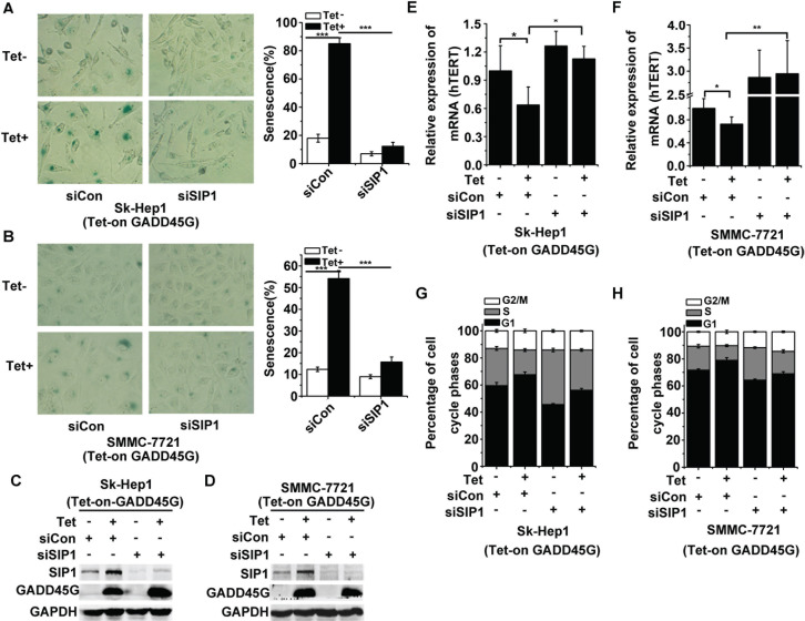 SIP1 inhibition attenuates GADD45G-induced tumor cell senescence in vitro (A-B) Tet-on-GADD45G-Sk-Hep1 A. and Tet-on-GADD45G-SMMC-7721 cells (B) were transfected with siRNA targeting SIP1 (siSIP1) or with control siRNA ( siCon), then cultured for 3 days with or without GADD45G induction. Representative images of <t>SA-β-gal</t> staining (left panel) and the percentages of positive cells (right panel) are shown. Data shown are mean ± SD from three independent experiments (*** P
