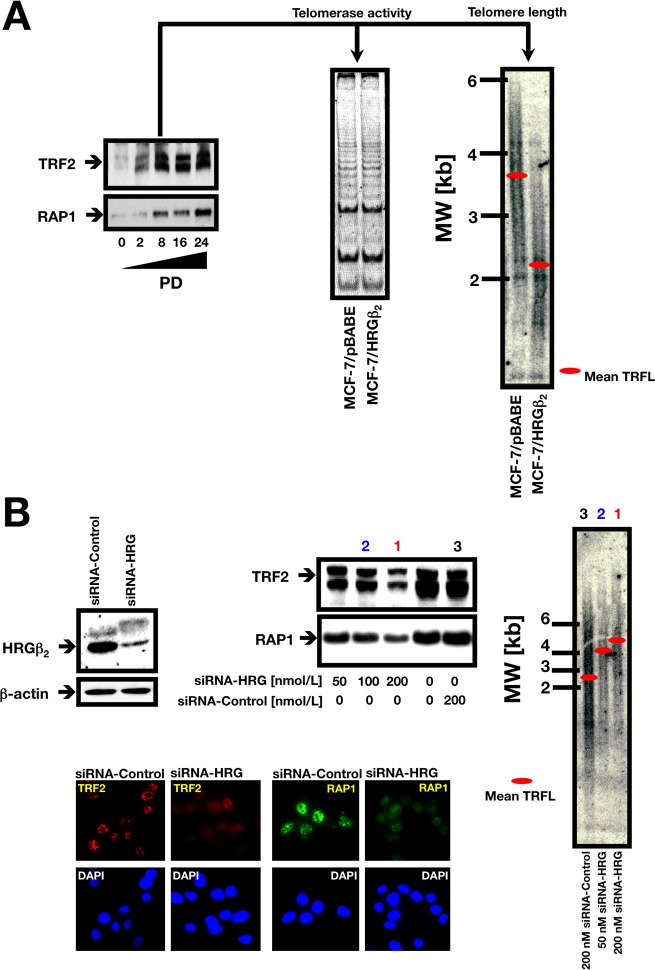 """A. Retrovirally-induced HRGβ2 regulates TRF2 and RAP1 expression and telomere length in MCF-7 breast cancer cells. Left. Representative immunoblot ( n = 3 ) showing upregulation of TRF2 and RAP1 in MCF-7 cells retrovirally engineered to overexpress HRGβ 2 . PD 0 represents the first sub-passage after selection for retroviral infection. At the indicated PDs, cells were washed with cold PBS and solubilized in lysis buffer containing phosphatase and protease inhibitors. Fifty μg of protein per sample was resolved by SDS-PAGE and subjected to Western blotting for TRF2 and hRap1 as described above (see """"Materials and Methods"""" for details). Middle panel. MCF-7/HRGβ 2 cells do not exhibit significant changes in telomerase activity as assessed by the TRAP assay. Three thousand cell equivalents were used for each reaction and a representative experiment is shown ( n = 3 ). Right panel. Telomere length changes in MCF-7 cells upon retrovirally-induced HRGβ 2 overexpression. The panel shows a representative genomic blotting analysis of telomeric restriction fragments in Hin fI/ Rsa I-digested genomic DNA from retrovirally-infected MCF-7 cells probed with a TTAGGG repeat fragment. B. HRG knockdown reduces the presence of TRF2 and RAP1 on telomeres and promotes telomere lengthening. Top left. Depletion of HRG with siRNA significantly affects TRF2 and RAP1 protein levels. A representative Western blot of MDA-MB-231 cell lysates 72 h after transfection of siRNA to HRG or siRNA control is shown ( n = 3 ). Top right. TRF length analysis in HRG knockdown MDA-MB-231 cells. The panel shows a representative genomic blotting analysis of telomeric restriction fragments in Hin fI/ Rsa I-digested genomic DNA from MDA-MB-231 cells transiently transfected with control siRNA or graded concentrations of HRG siRNA (PD 4) probed with a TTAGGG repeat fragment ( n = 3 ). Bottom. Reduced TRF2 and RAP1 telomeric signals after HRG siRNA treatment. Western blot analysis showing the significant depletion"""