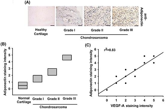 The correlation of adiponectin, VEGF-A and tumor stages in human chondrosarcoma tissues A. Immunohistochemistry of adiponectin expression in healthy cartilage and chondrosarcoma tissue. Scale bar = 50 μm. B. Quantification of adiponectin staining. The correlation data are shown in C. Data represent the mean ± S.E.M.