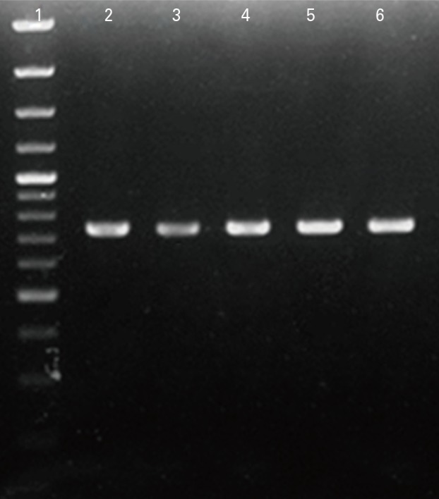 Agarose gel electrophoresis of polymerase chain reaction products stained with ethidium bromide. Lane 1, DNA marker; lanes 2, 3, 4, 5, and 6, amplified hpaA gene using pfu DNA polymerase.