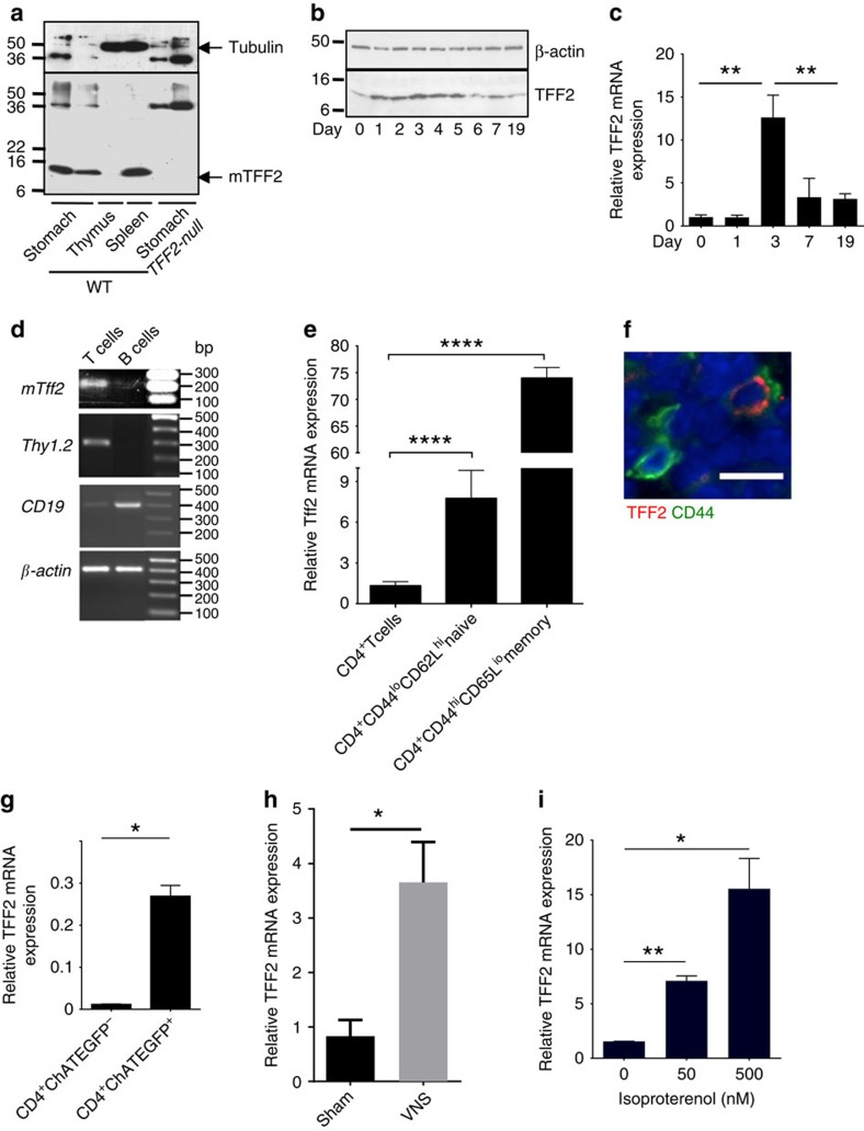 TFF2 is expressed in CD4 + memory T cells and regulated by the vagus nerve. ( a ) Identification of TFF2 peptide in normal spleen of wild-type mice by western blot. ( b , c ) Time-course change of the TFF2 protein ( b ) and mRNA ( c ) in spleen of wild-type mice after 2.5% DSS treatment. Data shown are representative of two experiments for each analysis. Data is mean±s.e.m of triplicate determinations, ** P