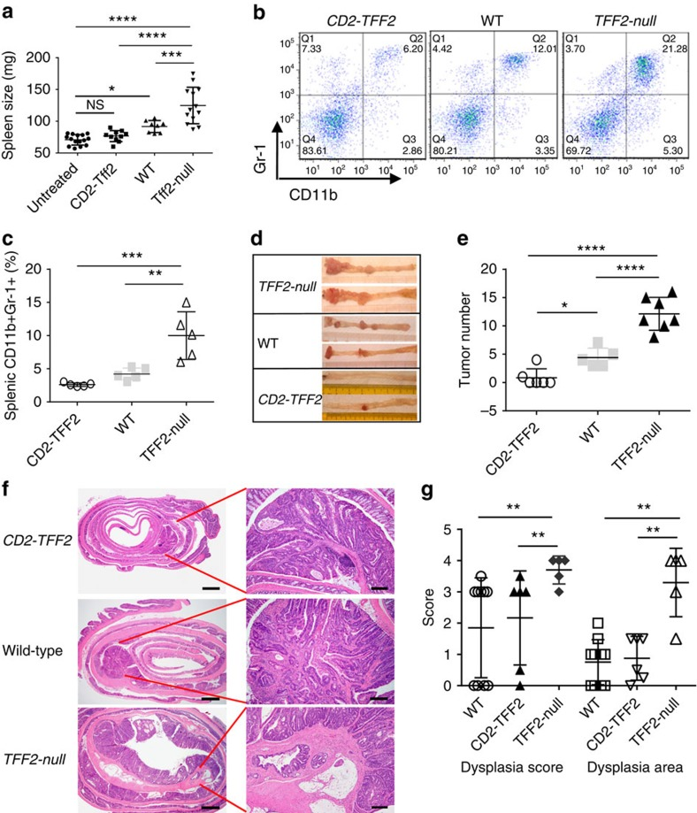 TFF2 status was associated with the expansion of IMC/MDSCs and development of colorectal cancer. ( a , b ) DSS treatment results in splenomegaly ( a ) and accumulation of CD11b + Gr-1 + cells ( b ) in Tff2-null and wild-type mice, but not in CD2–Tff2 counterparts. Representative data from two independent experiments, 3–6 mice per group for each time point. NS, non-significant, * P