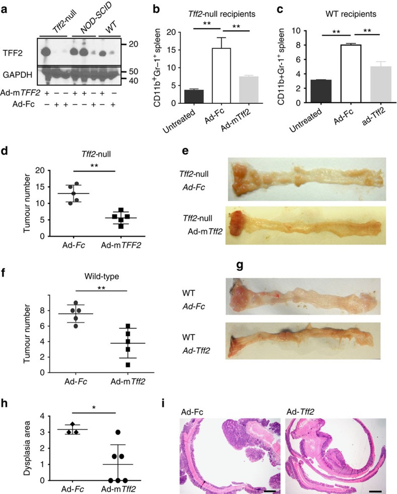 Adenoviral delivery of TFF2 reduced colorectal carcinogenesis. ( a ) Detection of recombinant TFF2 by western blot in serum from Tff2-null , NOD-SCID and WT mice 5 days after Ad-m Tff2 treatment (5 × 10 8 pfu per mouse). ( b , c ) Ad- Tff2 reduced splenic CD11b + Gr-1 + cells compared to the Ad-Fc treated controls in both Tff2-null ( b ) and wild-type mice ( c ) following AOM/DSS protocol, ** P