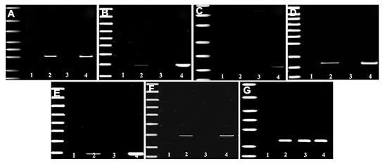 Electropherograms of RT-PCR product of mRNA extracted from bone marrow derived SSEA-1 positive cells induced into insulin secreting cells (lane 2), undifferentiated bone marrow derived SSEA-1 positive cells (lane 3) and pancreatic β-cells as a positive control (lane 4). The leftmost lane represents the DNA ladder and distilled H2O (lane 1) was used as a negative control. β-actin amplification served as an internal control. A. Pdx1 , B. Ngn3 , C. glucagon , D. Amylase , E. Insulin1 , F. Insulin2 and G. β-actin. RT-PCR; Reverse transcription polymerase chain reaction and SSEA-1; Stage-specific embryonic antigen 1.