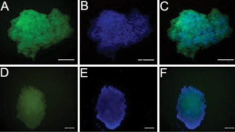 Immunofluorescence reveals bone marrow derived SSEA-1 positive cells differentiated into insulin secreting cells in vitro . The insulin secreting cells at days 24 were fixed and stained with antibodies against Pdx1 and Glut2 and visualized with secondary antibody (FITC). 4′, 6-diamidino-2-phenylindole (DAPI) was used to counter-stain DNA (blue) (scale bar; 50 μm). A. Anti Pdx1 immunofluorescence, B. Nuclear counterstain with DAPI, C. Merged image of A and B, D. AntiGlut2 immunofluorescence, E. Nuclear counterstain with DAPI and F. Merged image of D and E. SSEA-1; Stage-specific embryonic antigen 1.