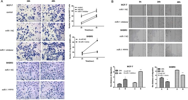 miR-1 inhibits the migration and wound healing of CSC in vitro CD44+CD24− CSC from MCF-7 and SKBR3 cells were transfected with, or without, miR-1 NC, miR-1 inhibitor, or miR-1 mimic. Four hours after transfection, the migration of different groups of CSC for the indicated time points was determined by transwell migration assay A. In addition, two days after transfection, the wound healing of different groups of cells within 24 or 48 h was tested B. Data are representative images and expressed as the mean ± SD of each group of cells from three separate experiments. The number of migrated SKBR3/CSCs was similar to those of SKBR3/miR-1NC CSCs and the migration distance of control MCF-7CSC and SKBR3/CSC was similar to those of MCF-7/miR-1NC and SKBR3/miR-1NC CSCs, respectively (data not shown). * p
