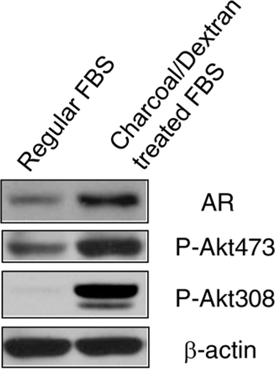 Depletion of androgen increased AR expression and Akt activity LNCaP cells were grown in regular <t>RPMI</t> 1640 medium with 10% FBS and androgen-depleted medium, phenol red-free RPMI 1640 supplemented with 10% charcoal/dextran-treated FBS for 10 days. Cells were lyzed and 50 μg total protein was resolved by electrophoresis on a 10% SDS-PAGE gel. Immunoblotting was performed using AR and phospho-Akt antibodies, respectively. β-actin protein was used as a loading control.
