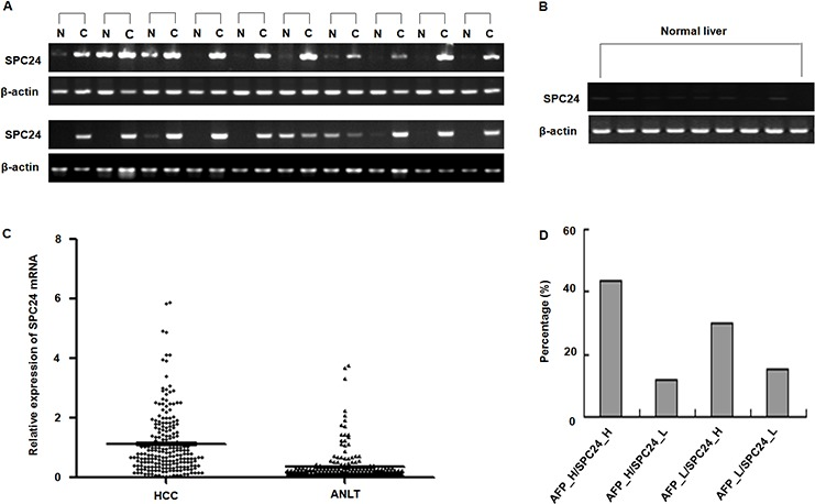 SPC24 mRNA expression in HCC specimens analyzed by RT-PCR and real-time RT-PCR A. The mRNA of SPC24 was measured in 20 cases of HCC specimens [C] and corresponding adjacent noncancerous liver tissues [N] by RT-PCR. The relative mRNA level of SPC24 was normalized based on that of an internal reference β-actin. PCR products were visualized by electrophoresis on 2% agarose gels. B. The mRNA of SPC24 was evaluated in 9 cases of normal liver tissues by semi-quantitative RT-PCR. β-Actin was used as an internal control. PCR products were visualized after electrophoresis through 2% agarose. C. The mRNA levels of SPC24 in 212 paired HCC specimens and adjacent noncancerous liver tissues (ANLT) were determined by quantitative real-time PCR, β-Actin was used as an internal control. D. Combined analysis of SPC24 mRNA expression and AFP level in examined 212 cases of HCC. The number represents the percentage among the 212 cases of HCC patients.