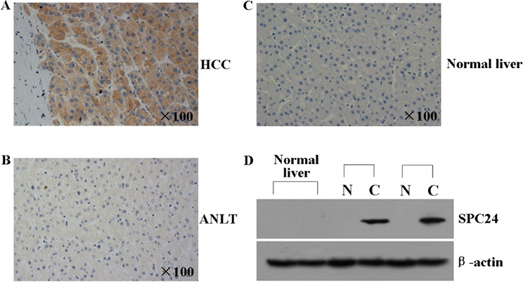 <t>SPC24</t> protein was analyzed by immunohistochemistry and western blot in HCC tissues A and B. The representative immunohistochemical pictures of one pair of HCC specimen (upper panel) and corresponding noncancerous tissue (lower panel) from a tissue array containing 69 pairs of HCC specimens were shown. The pictures were stainied with SPC24 antibody, and the nuclei were counterstained with hematoxylin. C. The representative immunohistochemical staining in one normal liver tissue is shown. The nuclei were counterstained with hematoxylin. D. SPC24 expression in 2 normal liver tissues, 2 paired HCC [C] and adjacent non-cancerous liver tissues [N] was evaluated by Western blot. β-actin protein was used as an internal control.