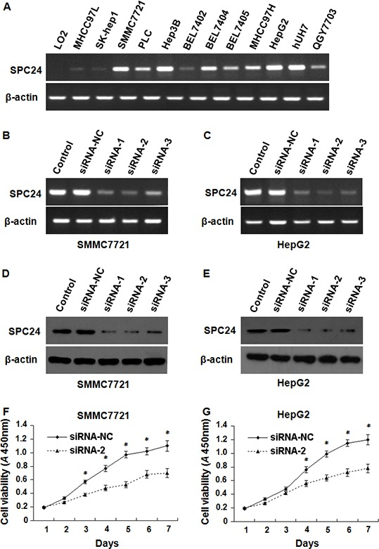 The inhibition of SPC24 decreased HCC cell growth SPC24 mRNA was detected by semi-quantitative RT-PCR; the products were visualized after electrophoresis on 2% agarose gels and β-actin served as an interval control. mRNA levels of SPC24 were detected by semi-quantitative RT-PCR in 12 kinds of human HCC cell lines and one of normal liver cell line A. RNAi efficiency was demonstrated by semi-quantitative RT-PCR in SMMC-7721 B. and HepG2 C. cells, and also confirmed by Western blot in SMMC-7721 D. and HepG2 E. cells. SPC24 inhibition by siRNA-2 dramatically decreased cell growth in both SMMC-7721 F. and HepG2 G. cells using cell viability assay. Experiments were performed in triplicate and data were shown as mean ± SD, * p