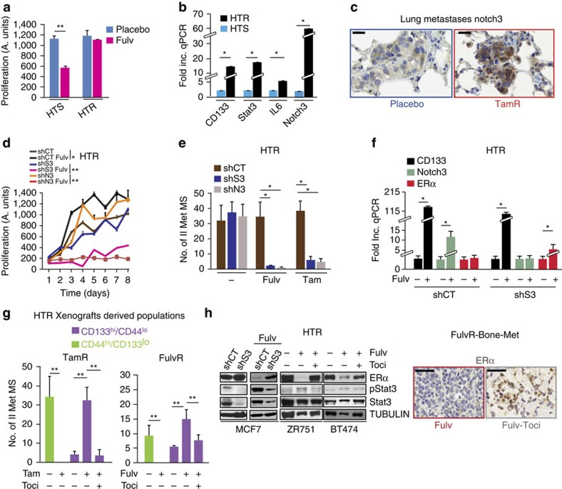 IL6R blockade increases ER and decreases Stat3/Notch3/CD133 expression restoring HT sensitivity. ( a ) Metastatic tumour cells, isolated from Fulv-resistant metastases (MCF7:FulvR, Supplementary Table 2 ), were cultured in the presence of vehicle (Placebo) or Fulv (10 μM), and growth was determined after 10 days using CalceinAM fluorescent probe: partial (sensitive, HTS) or complete hormone-resistant features (HTR) were generated. Data are reported as mean (fluorescence)±s.e.m. of the last time point of the growth curve (three biological replicates with three technical replicates each). ( b ) Fold increase in the expression of CD133, Stat3, IL6 and Notch3 mRNA using qPCR from HTR and HTS cells treated with Fulv (see a , HTS transcript as reference). ( c ) Representative images of Notch3 expression by IHC of lung metastases from placebo versus TamR mice (scale bar, 20 μm). ( d ) Proliferation (CalceinAM fluorescence) in Stat3 or Notch3 stably silenced HTR cells (shS3, shN3) derived from FulvR-Met and propagated in vitro ( a ) in the presence/absence of Fulv (10 μM). Data are reported as the mean (fluorescence)±s.e.m. of each time point of the growth curve (three biological replicates with three technical replicates each). ( e ) Number-No- of II-MS ( > 100 μm) from FulvR-metastatic cells (MetMS) expressing stable shS3 and shN3 cultured in the presence/absence of Fulv (10 μM) and/or tamoxifen (1 μM, 14 days). ( f ) qPCR of CD133, Notch3 and ER mRNA (fold increase Fulv versus untreated cells) in shS3-FulvR-metastatic cells cultured in the presence/absence of Fulv in vitro (10 μM, 7 days). ( g ) Number of II-MS (diameter > 100 μm) from FACS-isolated (10 3 cells per well) CD44 hi and CD133 hi cells from TamR-Met and FulvR-Met ( Supplementary Table 2 ) treated with Tam (1 μM) or Fulv (10 μM) and tocilizumab (50 μg ml −1 ), either alone or in combination (7 days). ( h ) Western blot analysis and IHC images for ER expression from HTR cancer cell lines (ZR751, BT474) and xeno