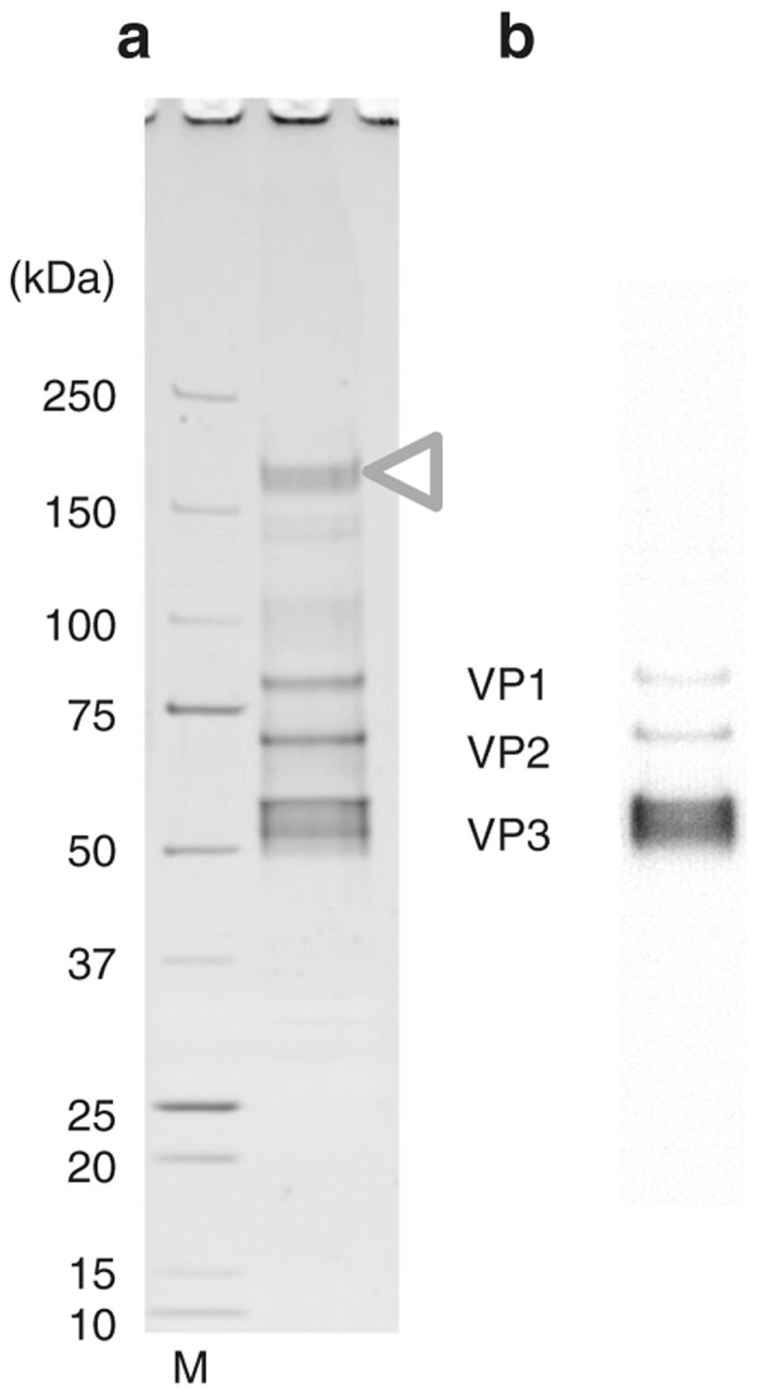 Purification with a buffer containing 50 mmol/l NaCl. ( a ) Recombinant adeno-associated virus serotype 1 (rAAV1) purified by ion-exchange column with a buffer containing 50 mmol/l NaCl was analyzed by 5–20% gradient sodium dodecyl sulfate–polyacrylamide gel electrophoresis (SDS-PAGE) gel (Oriole staining) and ( b ) western blotting. M: protein size marker. The 200 kDa protein impurities were still present (white triangle) and the purity was low. The three rAAV1 capsid proteins, VP1 (81.4 kDa), VP2 (66.2 kDa), and VP3 (59.6 kDa), were represented.