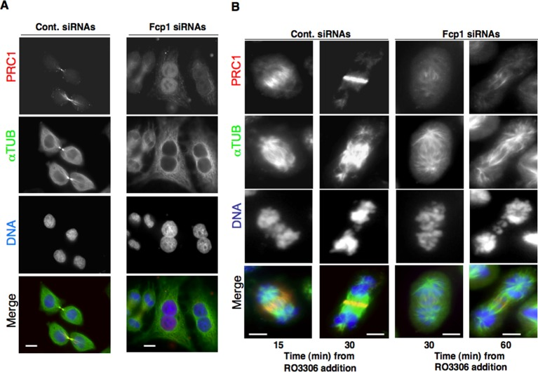 PRC1 localization in Fcp1-depleted cells. ( A ) Asynchronously growing control (Cont. siRNAs) or Fcp1-siRNAs-treated (Fcp1 siRNAs) HeLa cells were fixed and stained for PRC1 (red), α-tubulin (green) and DNA (blue). ( B ) Control (Cont. siRNAs) or Fcp1-siRNAs-treated (Fcp1 siRNAs) HeLa cells, previously arrested at prometaphase, were released into fresh medium in the presence of the proteasome inhibitor MG132. After 30 min incubation, the Cdk1 inhibitor RO3306 was added, cells were fixed and stained for PRC1 (red), α-tubulin (green) and DNA (blue) at indicated time points of further incubation. Scale bars, 10 μm. Data shown are representative of three independent experiments. DOI: http://dx.doi.org/10.7554/eLife.10399.006