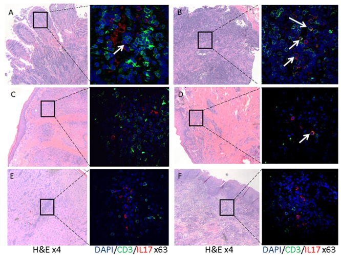 IL17 and CD3 dual detection in idiopathic chronic inflammatory lesion in dogs. FFPE tissues from dogs with naturally occurring diseases were identified, stained and scanned as described in the Material and Methods section. Each panel (A-F) consists of a low power (objective X4) image of an H E stained slide and a high power (objective X63) image of the same slide stained with CD3 (green), IL17 (red) and DAPI (blue). Presented are representative images from the duodenum (A) and mesenteric lymph node (B) of dogs (n = 5) with inflammatory bowel disease, skin (C) of a dog with chronic idiopathic dermatitis, gingiva (D) of dogs (n = 5) with chronic idiopathic gingivitis, cerebrum (E) of a dog (n = 1) with necrotizing meningoencephalitis and nasal mucosa (E) of dogs (n = 3) with chronic rhinitis. CD3 positive (i.e. green) and IL17 positive (i.e. red) cells are present in all of the represented lesions. Low numbers of double positive cells (indicated by white arrows) are present while the majority of the IL17 positive cells are CD3 negative.