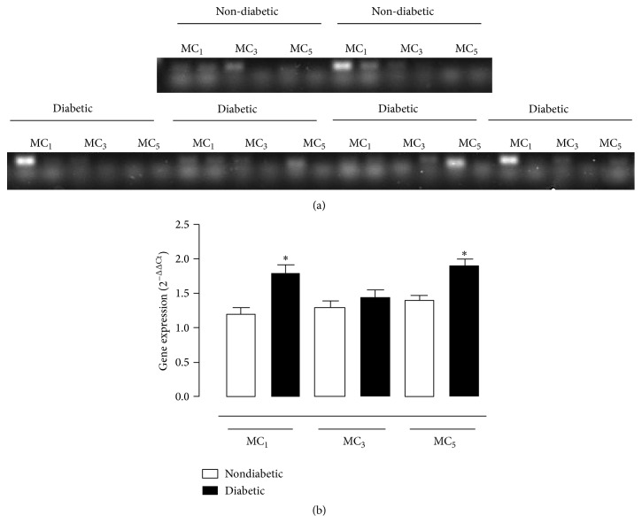 Real Time PCR for the expression of melanocortin receptor subtypes within the retina. (a) Representative traces of the RT-PCR and (b) relative 2 −ΔΔCt gene expressions for MC 1 , MC 3 , and MC 5 receptors assayed after 16-week follow-up in nondiabetic mice, and diabetic mice with retinopathy. Total RNA was extracted using RNeasy Plus Mini Kit and commercially available primer for amplification of mouse MC 1 , MC 3 , and MC 5 receptors. Negative controls were either RT without enzyme or PCR without cDNA template.