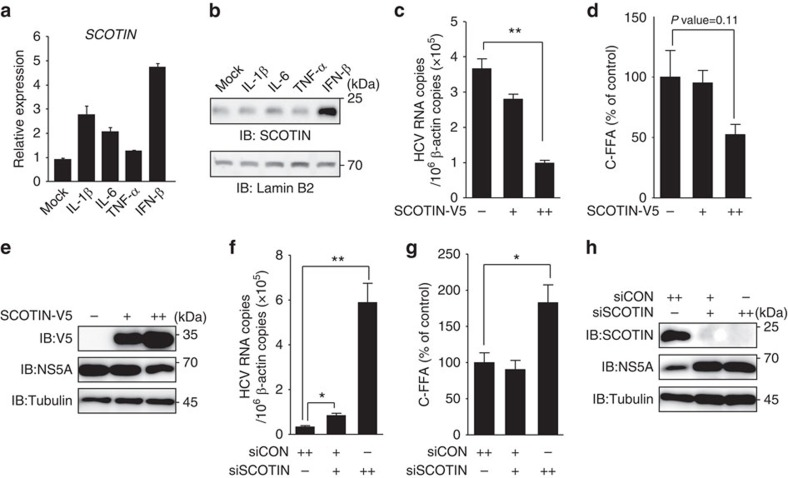 The ER protein SCOTIN inhibits HCV replication. ( a , b ) Huh-7 cells were incubated with IL-1β (10 ng ml −1 ), IL-6 (10 ng ml −1 ), tumour-necrosis factor (TNF)-α (10 ng ml −1 ) or IFN-β (100 U ml −1 ) for 12 h, and the expression of SCOTIN mRNA was measured with RT–qPCR and compared with that of RPL32 mRNA ( a ). Endogenous SCOTIN protein levels were measured by immunoblotting. Lamin B2 was used as a loading control ( b ). The bars indicate the mean value±s.d. obtained from three experiments. ( c – h ) Huh-7 cells were infected with HCVcc (0.5 multiplicity of infection (MOI)) for 2 days, followed by transfection of the indicated plasmids or siRNAs for 72 h. ( c , f ) The intracellular HCV RNA titre was measured using reverse transcriptase–quantitative PCR (RT–qPCR) and normalized to β-actin. ( d , g ) Infectious HCV virions were analysed using a colorimetric focus-forming assay. The results are presented as focus-forming units (FFU) per ml of culture supernatant. ( e , h ) Total cell lysates were subjected to immunoblotting using the indicated antibodies. The bars indicate the mean value±s.e. obtained from triplicate experiments. The asterisks indicate the P values calculated using the t -test. * P value