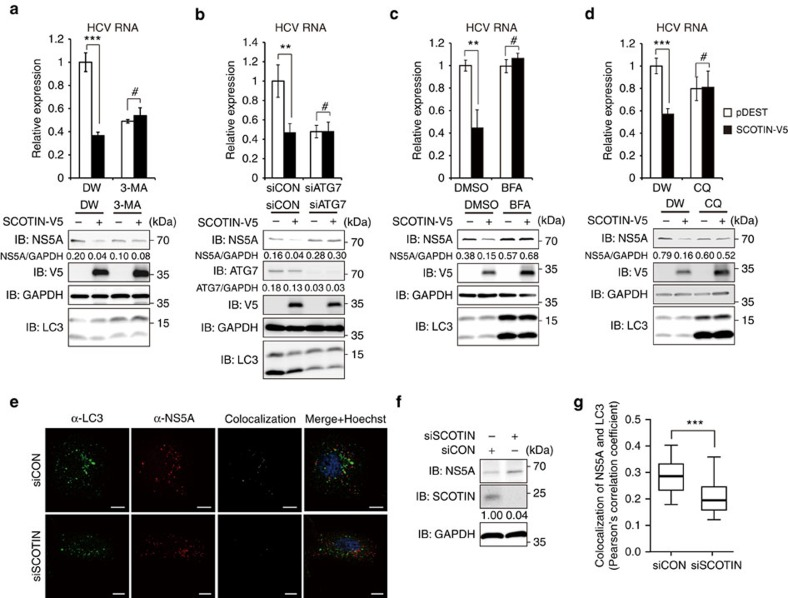 SCOTIN restricts HCV replication through autophagy-mediated protein degradation. ( a – d ) Huh-7 cells were transfected with the indicated plasmids or with siRNA, followed by HCVcc infection (10 MOI) for 3 days. The cells were treated with 3-MA (10 mM; a ), BFA (100 μM; c ) or CQ (50 μM; d ) for 12 h before harvesting. The intracellular HCV <t>RNA</t> levels were measured with <t>RT–qPCR,</t> and total cell lysates were subjected to immunoblotting using the indicated antibodies. DW was used as a control for 3-MA and CQ, and DMSO was used as a control for BFA. The bars indicate the average value±s.d. obtained from three experiments. The asterisks denote the P values calculated using the t -test (*** P value