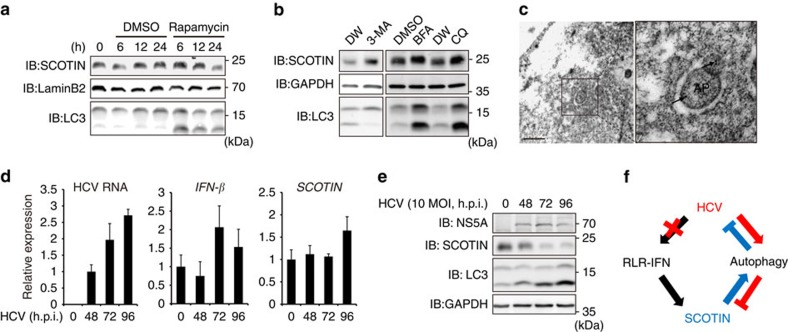 SCOTIN is degraded via HCV-induced autophagy. ( a , b ) Huh-7 cells were treated with rapamycin (2 μM) for the indicated durations ( a ) or with 3-MA (10 mM), BFA (100 μM) or CQ (50 μM) for 12 h ( b ). Total cell lysates were subjected to immunoblotting using the indicated antibodies. ( c ) Electron microscopic immunogold staining for the SCOTIN protein, showing its localization in autophagosomes (APs). Scale bar, 0.5 μm. Higher-magnification images are shown on the right. The gold particles (30 nm, indicated by the arrows) show the SCOTIN protein in APs. ( d , e ) Huh-7 cells were infected with HCVcc (10 MOI) for the indicated durations. ( d ) The expression levels of IFN-β, SCOTIN and HCV RNA were determined using RT–qPCR and were compared with those of RPL32 RNA. The relative HCV RNA levels shown were determined by comparison with that of the RNA of cells infected with HCV for 48 h, which was set to 1. The relative levels of IFN-β and SCOTIN RNA were determined by comparison with their levels in control cells, which were set to 1. The bars indicate the mean value±s.d. obtained from triplicate experiments. ( e ) Total cell lysates were subjected to immunoblotting using the indicated antibodies. ( f ) Schematic illustration of the proposed mechanism.