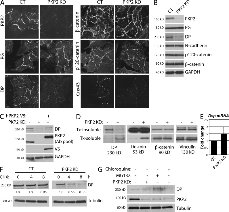 PKP2 KD in neonatal CMs disrupts area composita formation via loss of DP localization and stability. Freshly isolated neonatal CMs were infected with adenovirus containing either control or PKP2 KD constructs, and samples were analyzed 72 h postinfection. (A) Control (CT) and PKP2 KD CMs grown on coverslips were stained for cell–cell junction components, including PKP2, PG, DP, β-catenin, p120-catenin, and Cnx43. PKP2 KD specifically results in a major loss of DP and Cnx43 from junctions, but not other junctional markers. Bar, 20 µm. (B) Protein levels of cell–cell junction proteins are not perturbed on loss of PKP2, except DP, whose expression is reduced by 60–70%. (C) Re-expression of human V5-tagged PKP2 in rat PKP2 KD CMs rescues DP protein levels. A pool of two antibodies was used to analyze PKP2 levels in this experiment (described in Materials and methods). (D) PKP2 KD results in an increase in DP solubility, as indicated by a decrease in DP levels in the Triton X-100 (Tx)–insoluble fraction and a concomitant increase in the Triton X-100–soluble fraction. Solubility of the intermediate filament protein Desmin is also increased, but solubility of other junctional markers such as β-catenin is not affected. Vinculin is included as a loading control. (E) RNA extracted from control and PKP2 KD cells was analyzed for Dsp mRNA levels by qPCR. Transcription of DP is not decreased on loss of PKP2 KD in CMs. (F) Control and PKP2 KD cells were treated with cycloheximide (CHX) for the indicated times, and samples are blotted for DP and tubulin. Degradation of DP is increased in PKP2 KD cells compared with control, as indicated by quantification of DP band intensity (normalized to tubulin) at the various time points. All images and blots shown are representative of three independent experiments. (G) Control, PKP2 KD, and PKP2 KD CMs treated with either a proteasomal inhibitor (MG132) or a lysosomal inhibitor (chloroquine) were blotted for DP and tubulin (loading control).