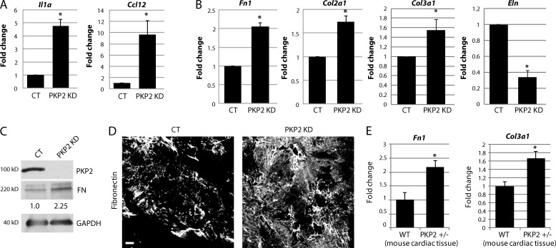 Loss of PKP2 induces inflammatory and fibrotic gene expression. (A and B) Freshly isolated neonatal CMs were infected with adenovirus containing either control (CT) or PKP2 KD constructs, and samples were analyzed 72 h postinfection. RNA isolated from control and PKP2 KD CMs were analyzed for mRNA levels of different genes by qPCR. KD of PKP2 in neonatal CMs resulted in a significant increase in mRNA levels of proinflammatory markers interleukin-1α ( Il1a ) and Ccl12 (A) and ECM genes fibronectin ( Fn1 ) and collagen ( Col2A1 and Col3a1 ) (B). Expression of Elastin ( Eln ) was reduced on loss of PKP2. (C) KD of PKP2 results in an increase in FN protein levels, as indicated by quantification of FN band intensity (normalized to GAPDH). (D) Control and PKP2 KD CMs were stained with an anti-FN antibody. KD of PKP2 results in an increase in FN expression as indicated by the increase in staining intensity of FN by immunofluorescence. Bar, 20 µm. (E) Analysis of RNA from wild-type (WT) and PKP2 +/− mouse hearts demonstrated a significant increase in expression of fibrotic genes such as Fn1 and Col3a1 on loss of PKP2 expression in vivo. All images and blots shown are representative of three independent experiments. For all graphs, fold change values from three or more independent samples are represented with error bars indicating SD. *, P